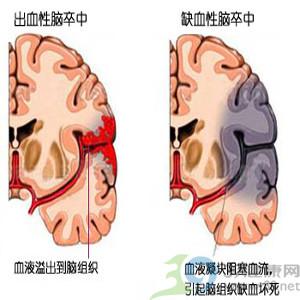 脑出血的八大先兆表现
